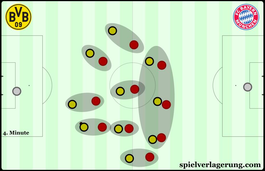 Bayern's man-oriented pressing scheme.